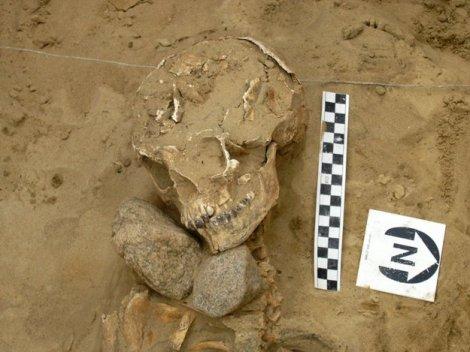 Subadulto de 12 a 15 años; sexo desconocido. Presenta piedras debajo de la barbilla.
